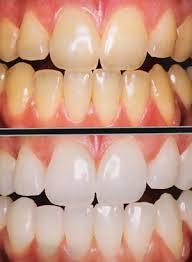 dentes 0