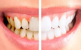 dentes 1